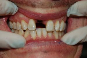 implant PRE